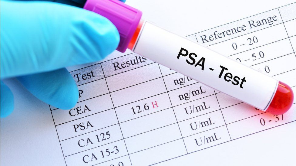 The PSA test is not a reliable test for prostate cancer
