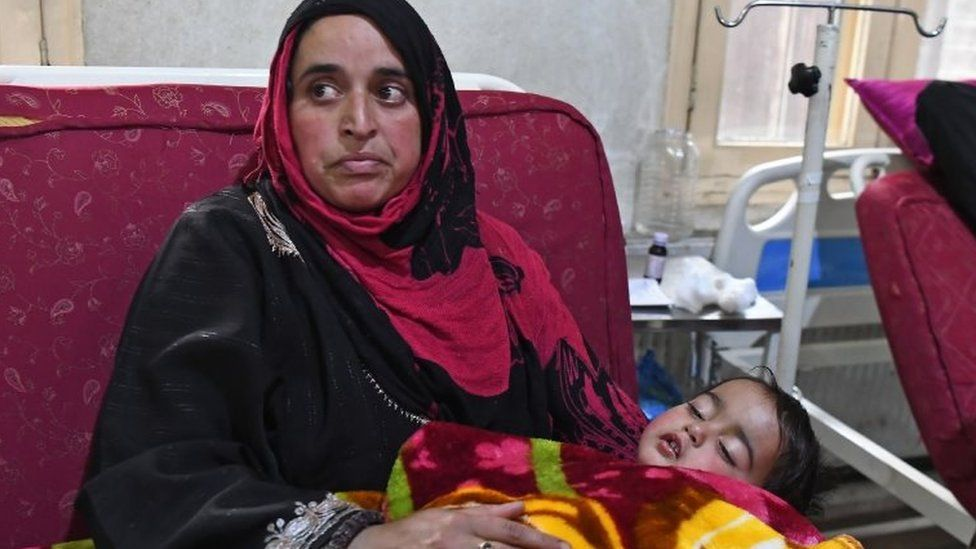 Heeba, a 20-month old baby girl, is held by her mother Masarat on a hospital bed in Srinagar on November 26, 2018, after being shot in her right eye by lead pellets by Indian government forces.