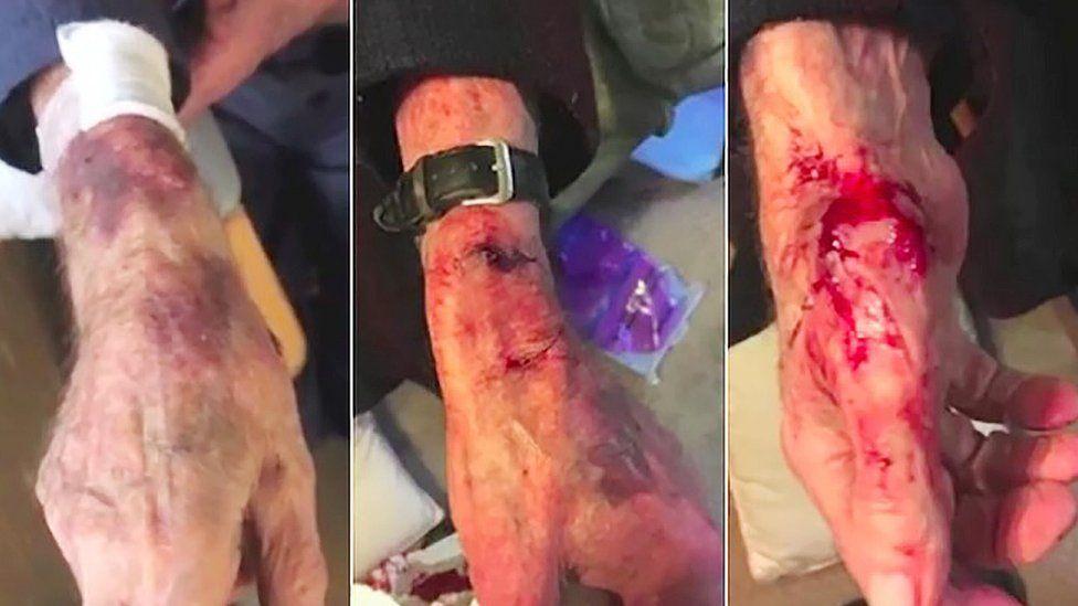 Michael Ring's injuries