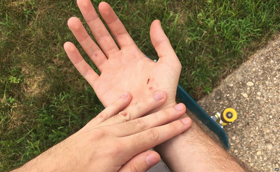 Mike Schultz's hand
