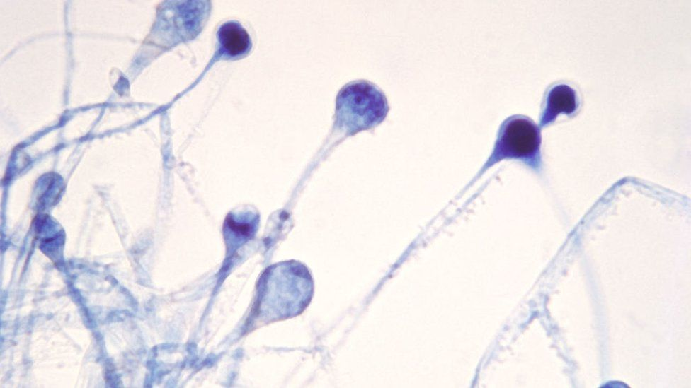 Photomicrograph Reveals A Number Of Young Sporangia Of A Mucor Spp. Fungus. Mucor Is A Common Indoor Mol