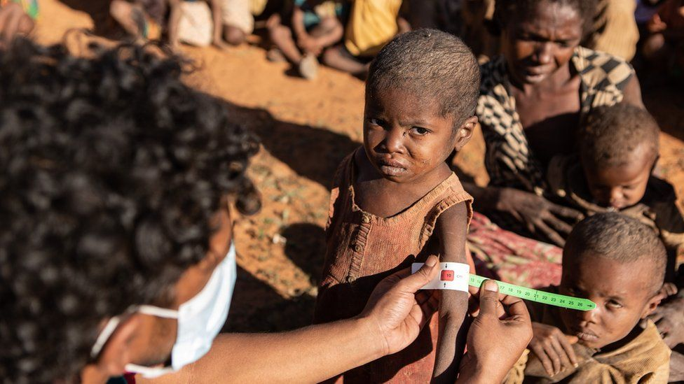 Retoboha, 4, getting MUAC measurements taken by WFP staff in Ambovombe, one of the districts with a very high number of malnourished children.