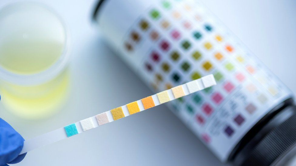 Urine test generic