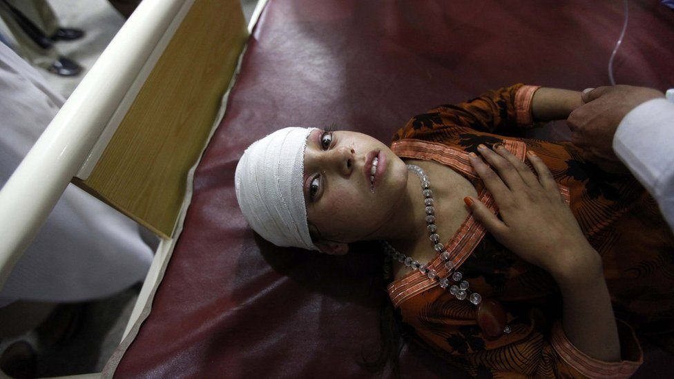 A girl injured in the earthquake receives medical treatment at a hospital in Peshawar, Pakistan (26 October 2015)