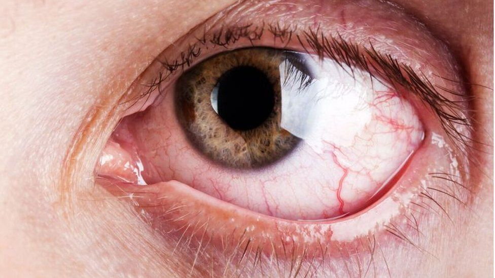 Eye irritation caused by novelty contact lenses