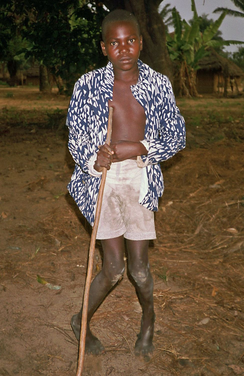 A boy with Konzo, photographed in Zaire in September 1986