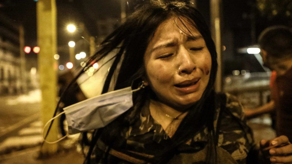 An injured person reacts during a protest against the new government of President Manuel Merino, in San Martin de Lima square, in Lima, Peru, 14 November 2020