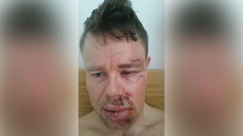 Stephen Thomas injured