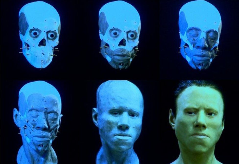 Composite image showing the reconstruction of Dawn's face