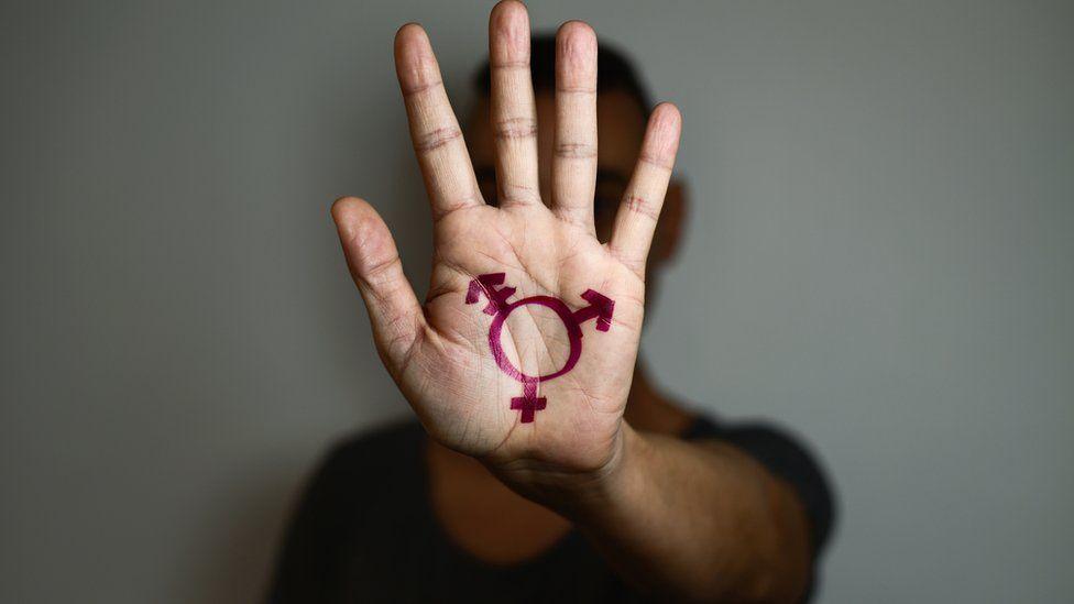 Hombre con varios signos en la mano.