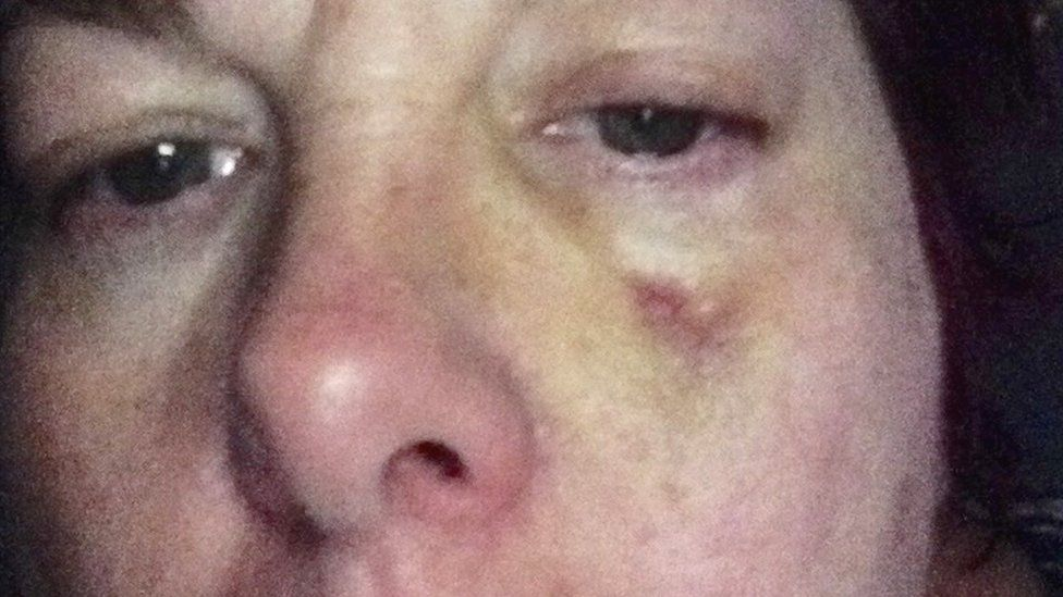 Sharon Morris's bruise on cheek