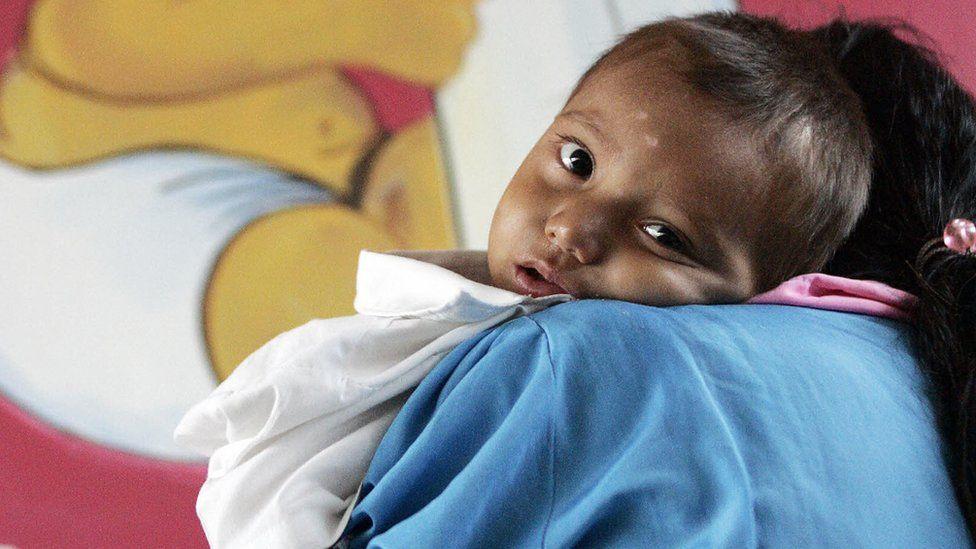 Desnutrición en Guatemala: por qué los niños de este país son los que más desnutrición crónica sufren en América Latina (si no es el país más pobre de la región)