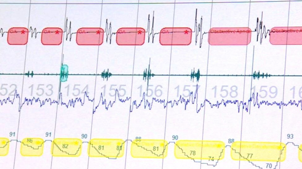 Computer screen with sleep test results on.