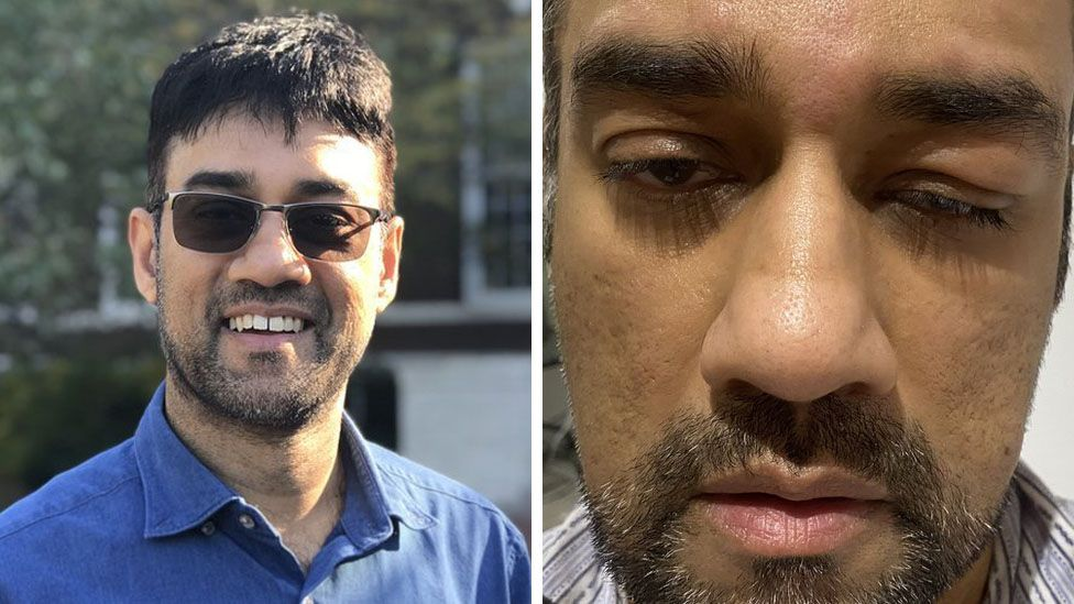 Dr Khan before catching Covid, and afterwards with swollen eyelids