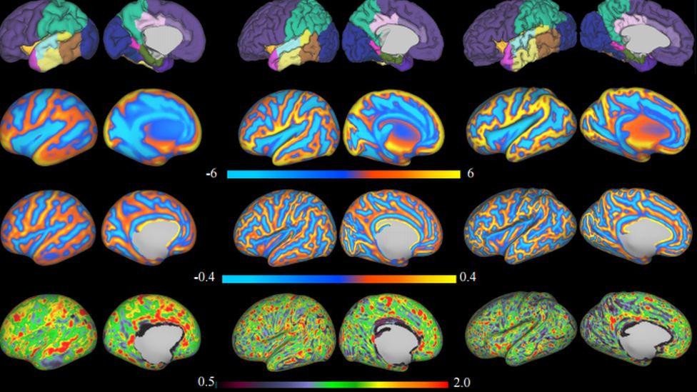 3D reconstruction of the brain's surface from newborn brain MRI data