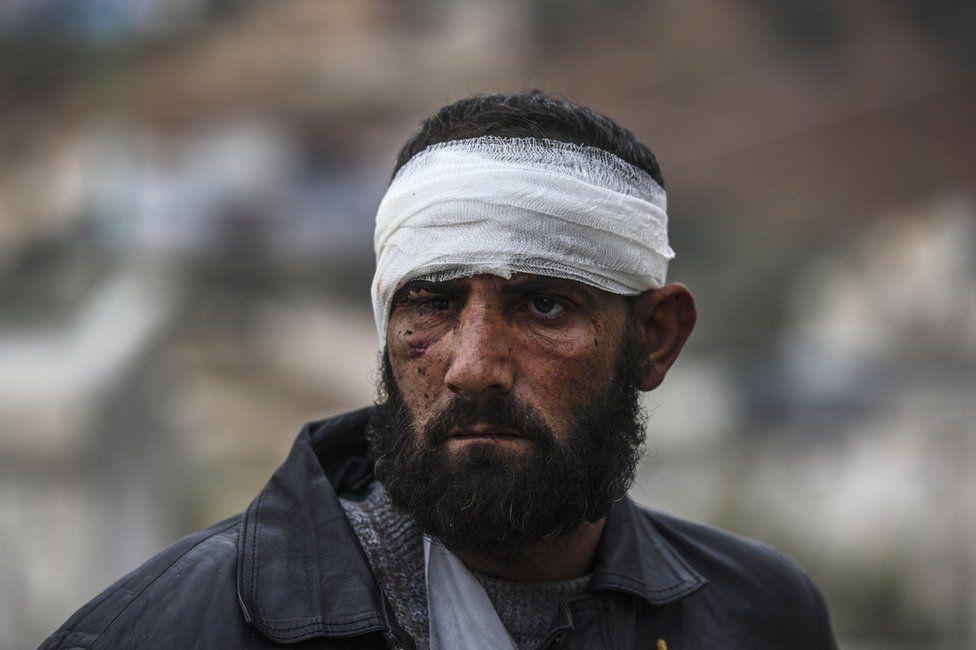 An injured Syrian man near the Turkish border, 16 December