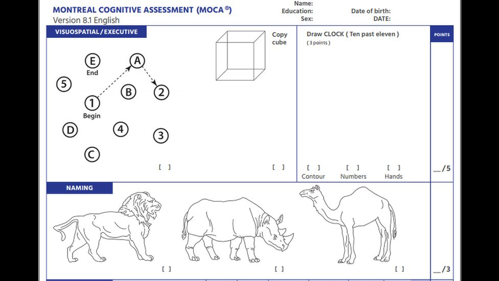 An example of the Montreal Cognitive Assessment (MoCA) neuropsychological test