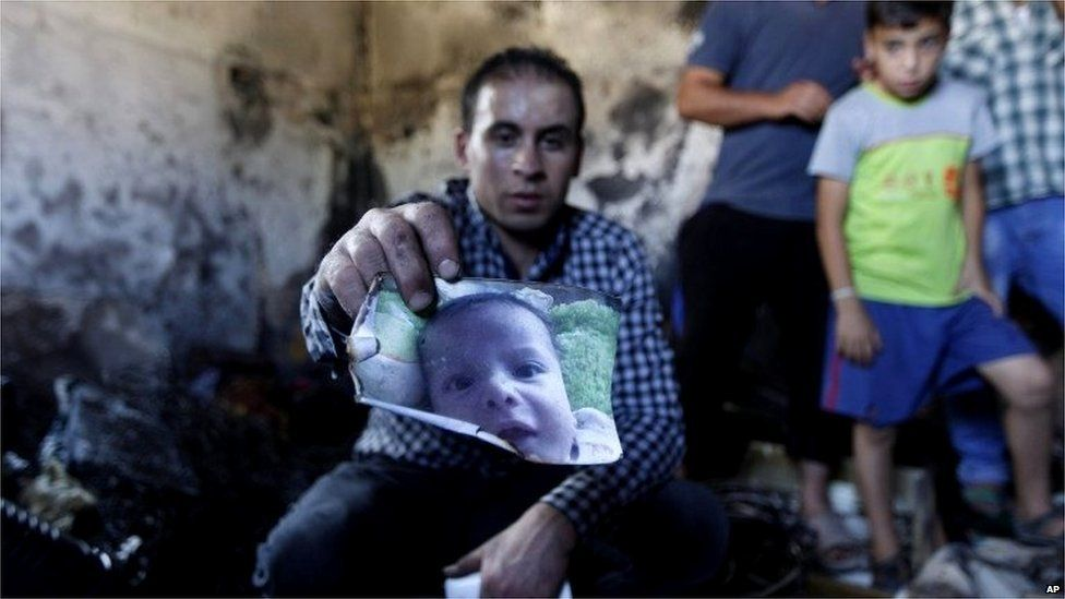 Palestinian holds scorched photo of Ali Saad Dawabsha (31/07/15)