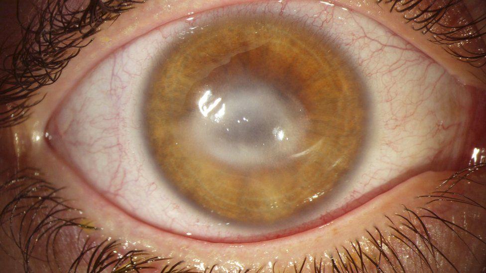 Fiquei cega de um olho por colocar lentes de contato com as mãos molhadas   - BBC News Brasil d9f552f45c