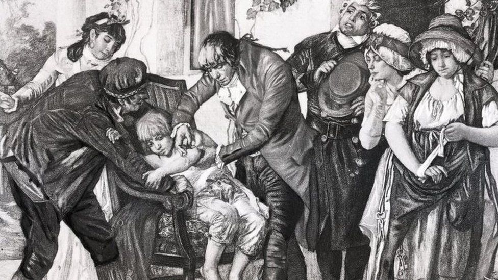 English physician Edward Jenner's first smallpox vaccination, performed on James Phipps in 1796. From a painting by GG Melingue