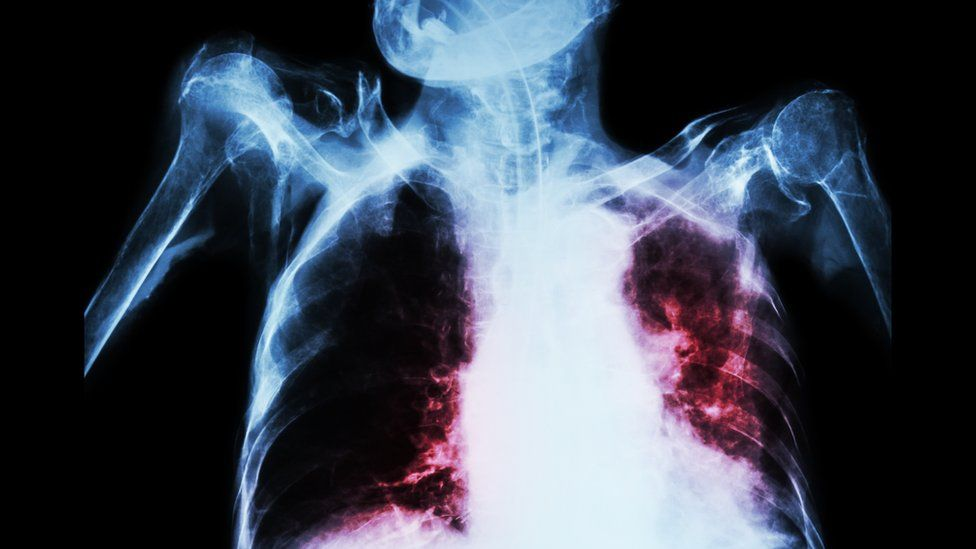 Tuberculosis lungs x-ray - mocked up by Thinkstock