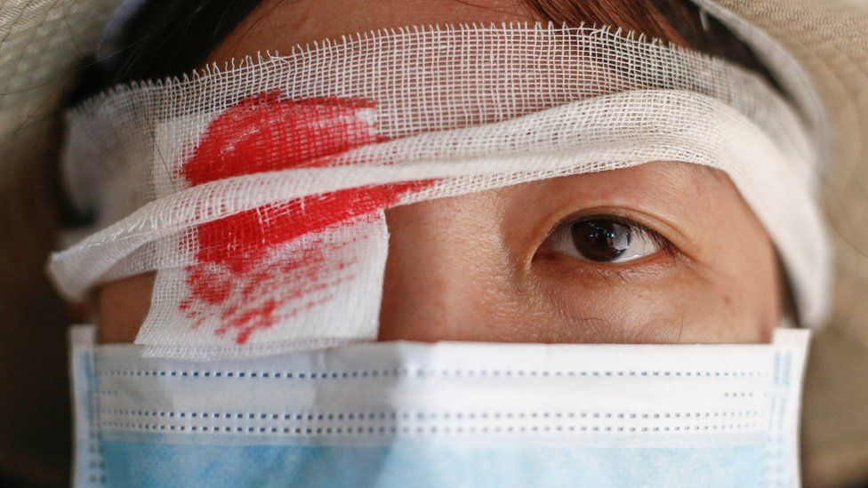 An anti-extradition bill protester wears an eye patch, in reference to a demonstrator that was injured at previous day's clashes