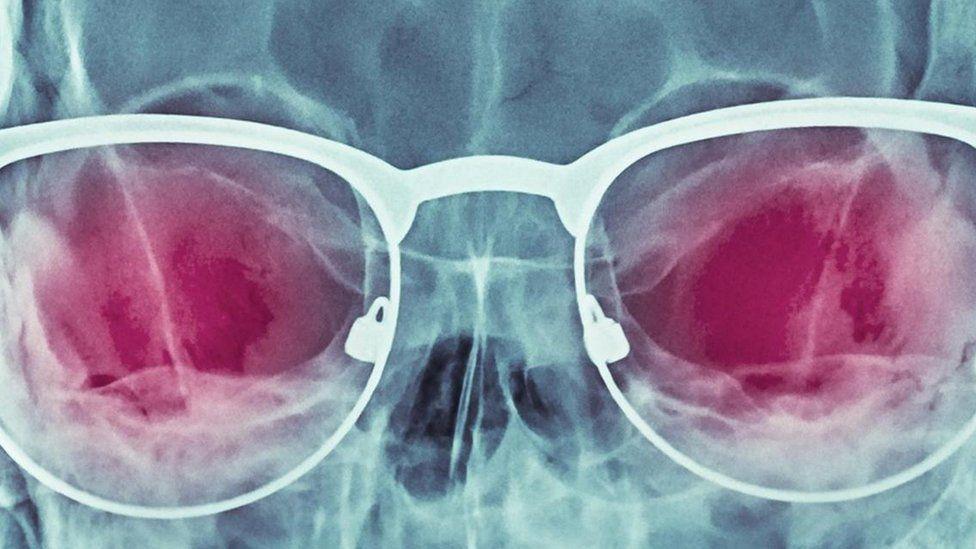 A história secreta dos 'óculos de raio-X' - e por que podem se tornar realidade