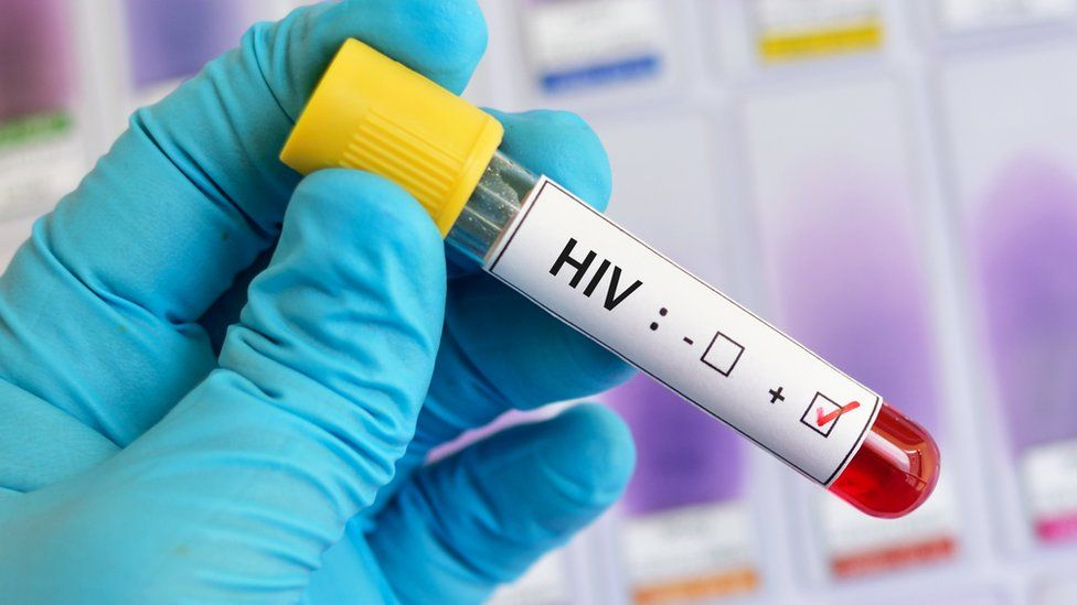 HIV-positive blood