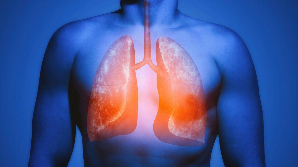 me duelen los pulmones por fumar