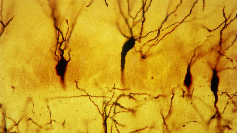 neurons in the hippocampus