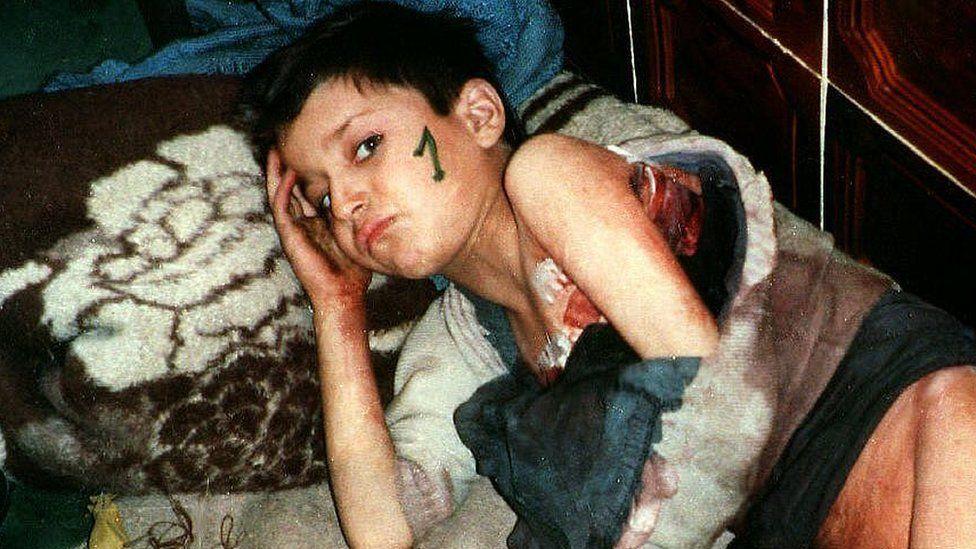 A small boy awaiting evacuatio from Srebrenica in 1993
