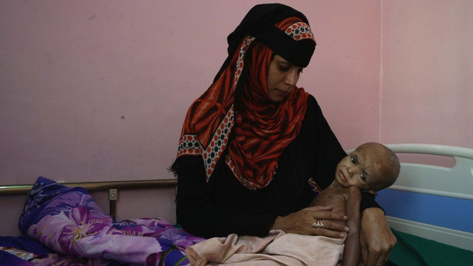 A mother is pictured in a clinic near Hudaydah with her child who is malnourished.