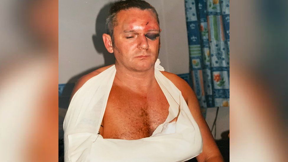 Nigel Lewis with the visible injuries of the attack