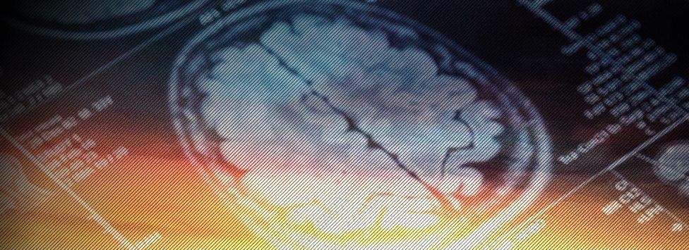 Você só usa 10% do cérebro? Pode aprender idiomas dormindo? Conheça 6 mitos sobre a mente