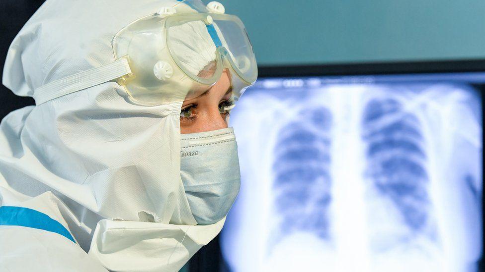 В России за сутки от коронавируса умерло рекордное число человек