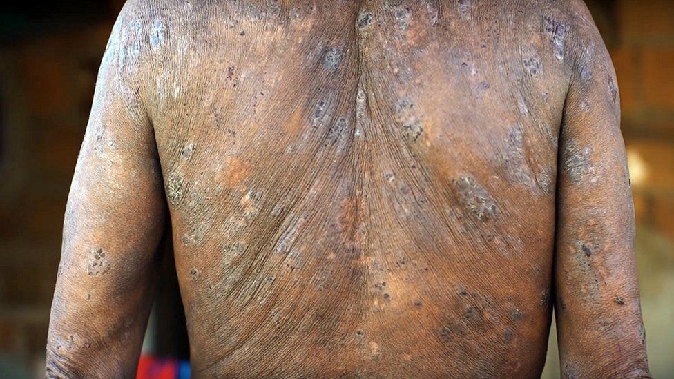 A worker who says his back was damaged by pesticides