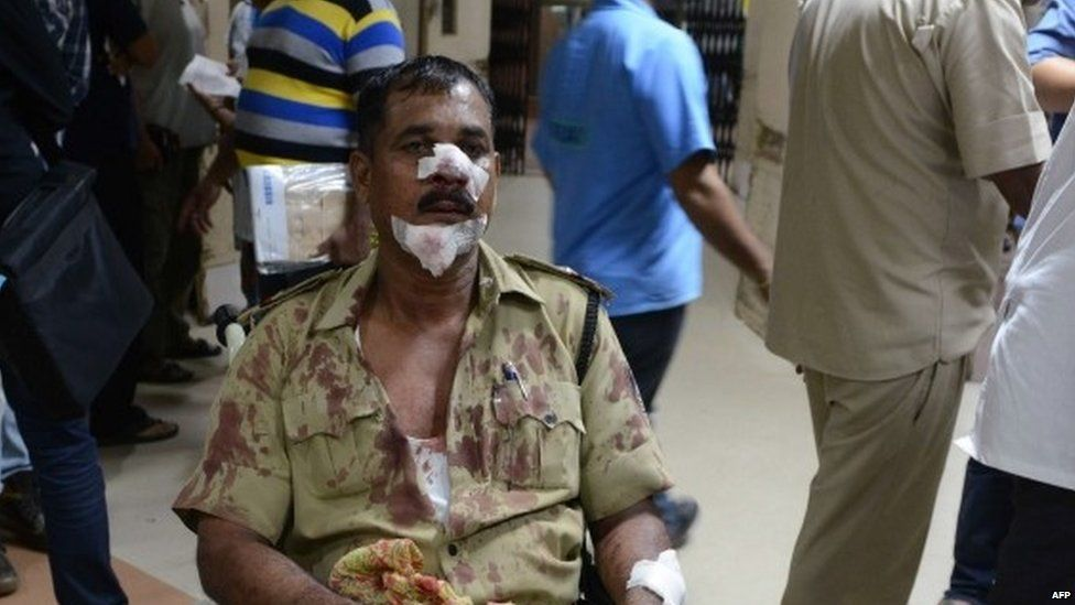An Indian policeman injured in clashes waits for treatment at a hospital in Ahmedabad late on August 25, 2015