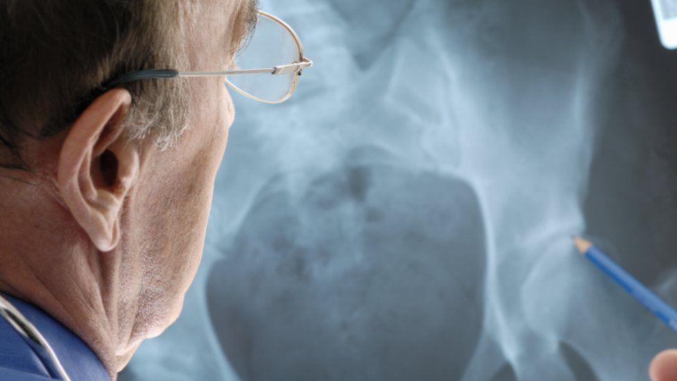 doctor examining a hip x-ray