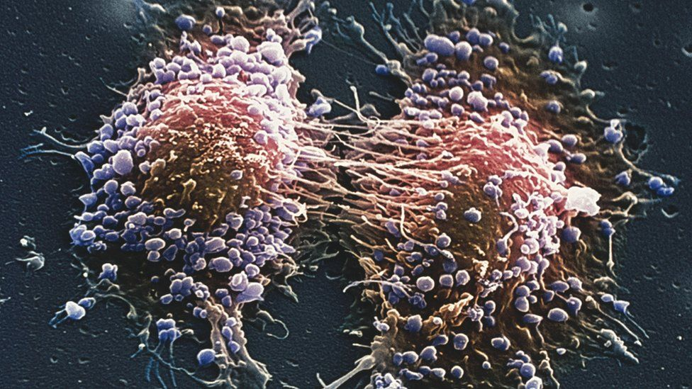 Two prostate cancer cells in the final stage of cell division (cytokinesis