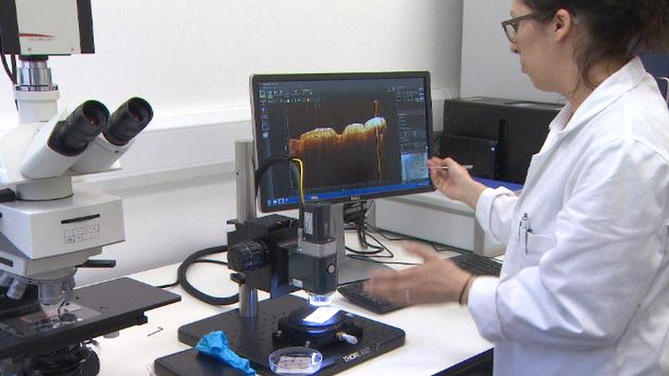 optical coherence tomography system
