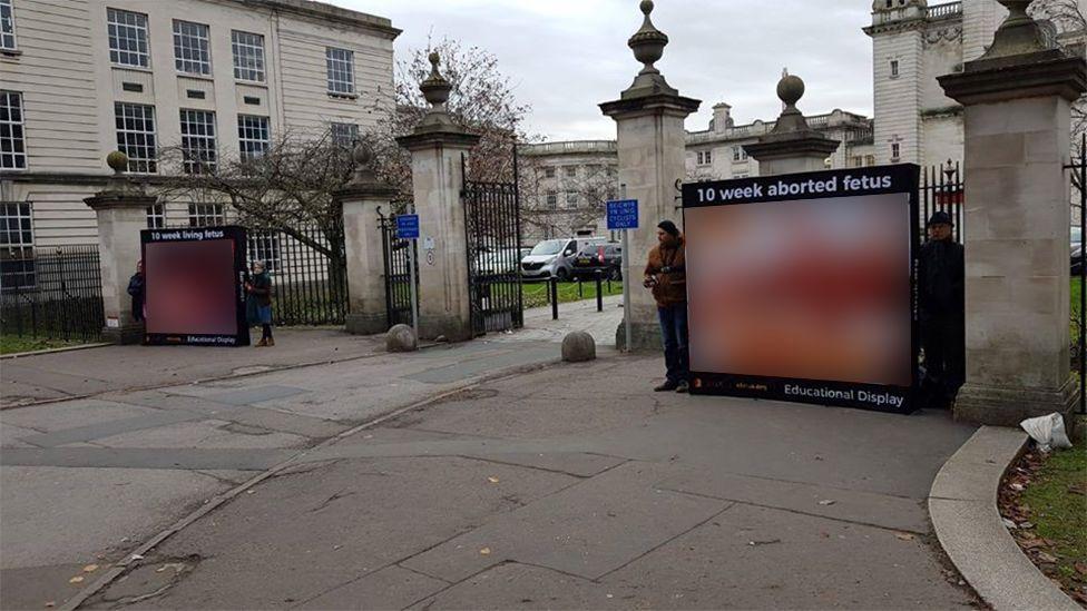 Graphic abortion images outside Cardiff University
