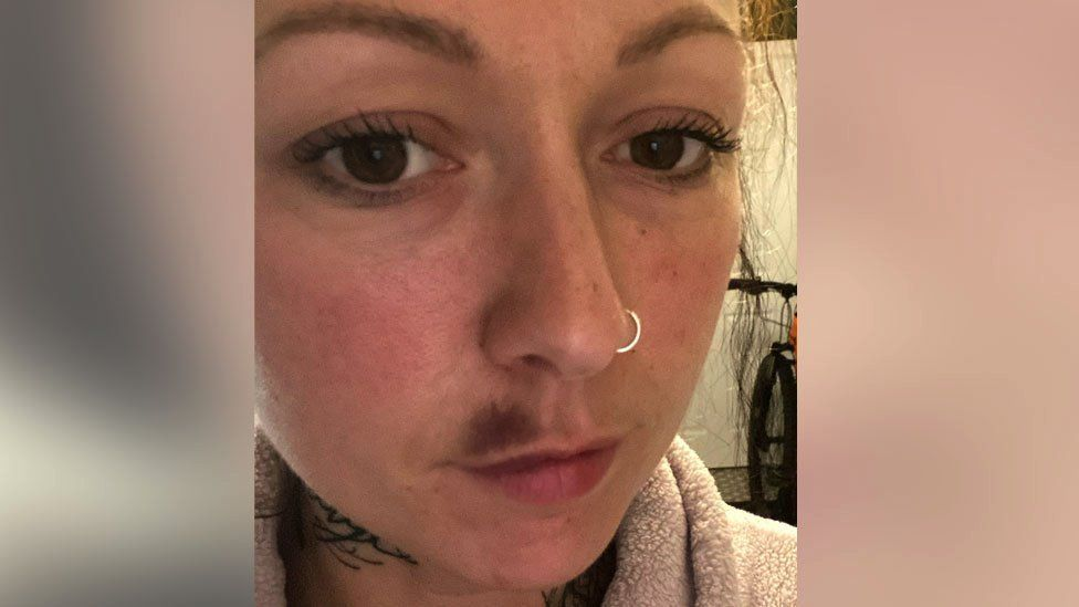 Picture of a person who had complications after a lip filler procedure