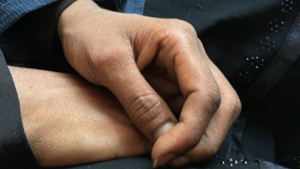 The hands of Halima. a 21-year-old Rohingya refugee who fled violence in Myanmar to be forced into prostitution in Bangladesh