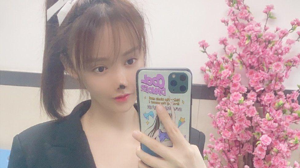 Gao Liu following her procedure
