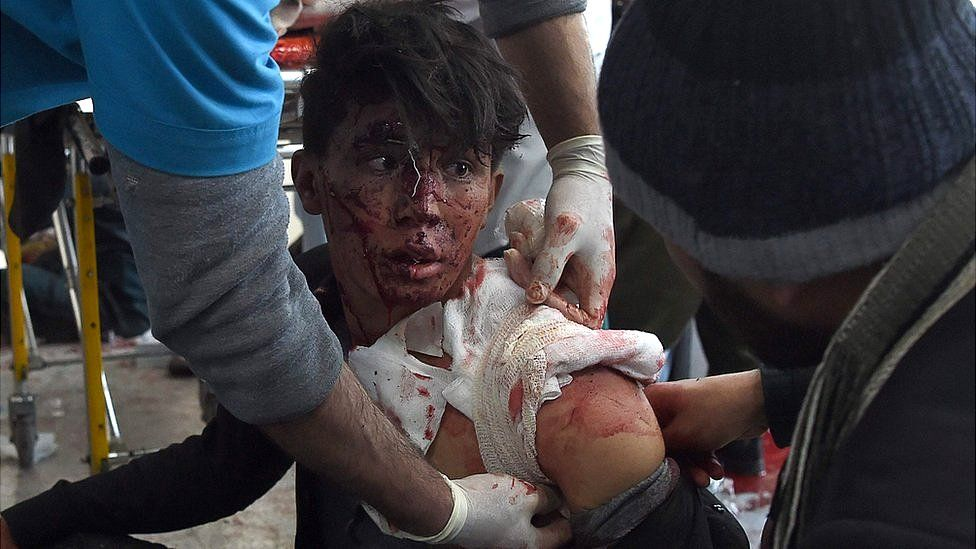 a wounded boy with blood on his face being bandaged by medical staff