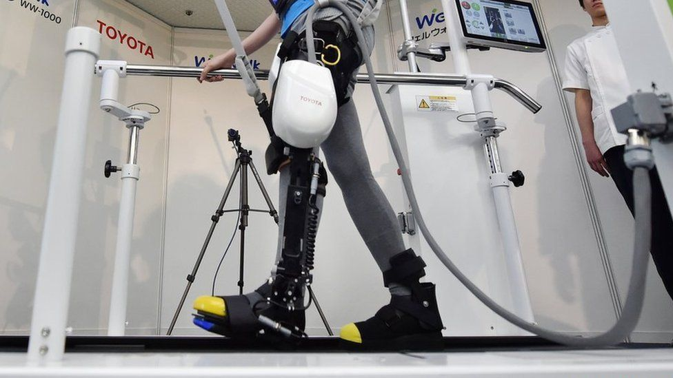 Woman's leg fitted with the Welwalk WW-1000 robotic brace