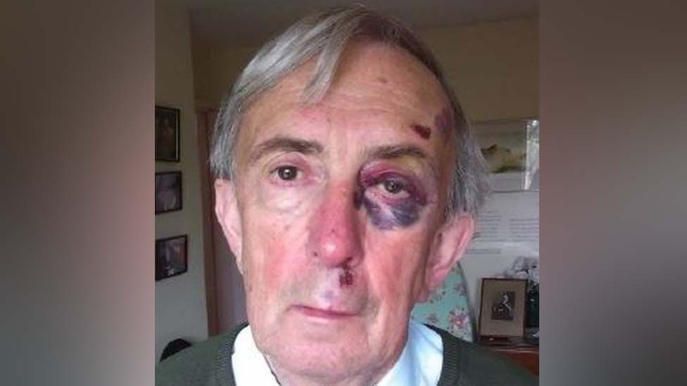 Peter Farquhar with a black eye