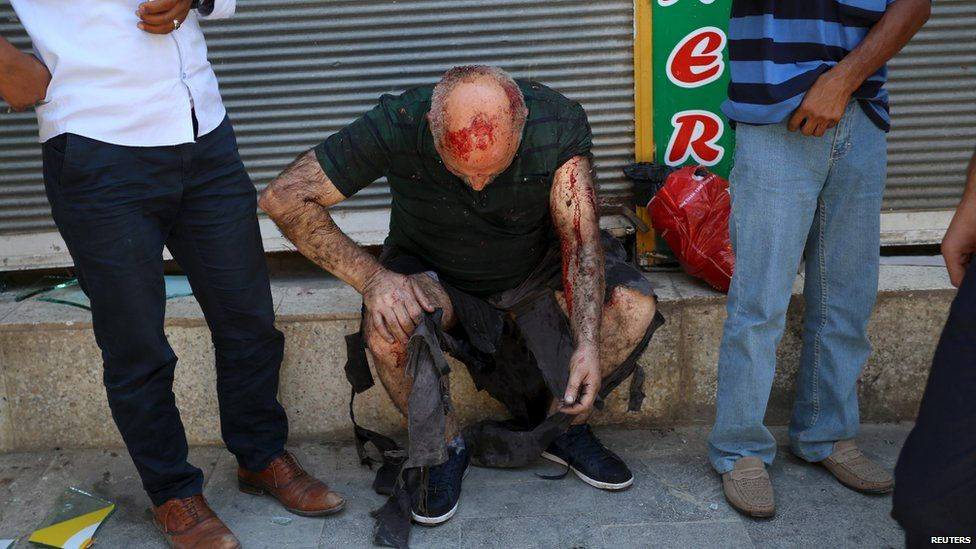 A wounded man sits on a step following an explosion in Suruc