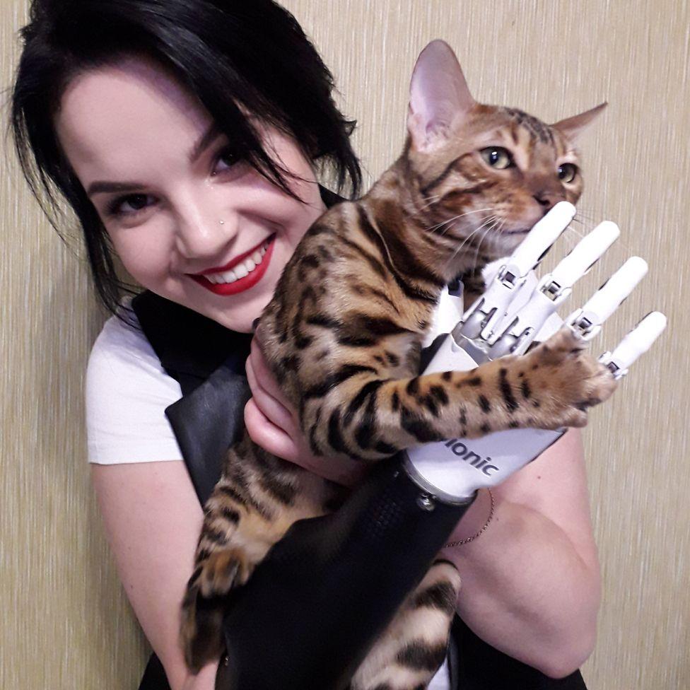 Margarita Gracheva with her prosthetic hand