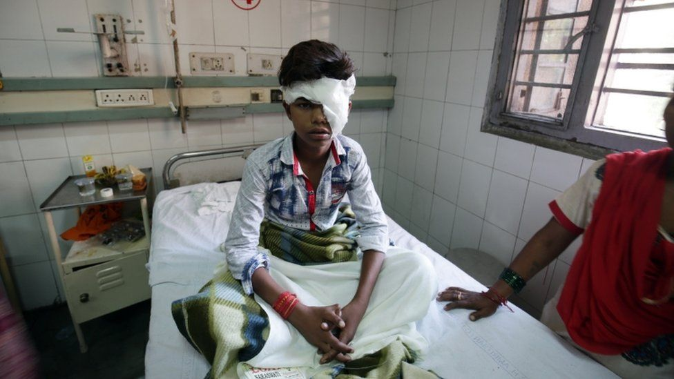 A child sits in Amritsar hospital with a bandage around his head